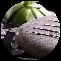 acupuncture-western-medicine