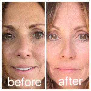 facial acupuncture denver before after