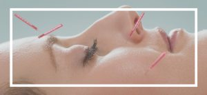 facial acupuncture effective